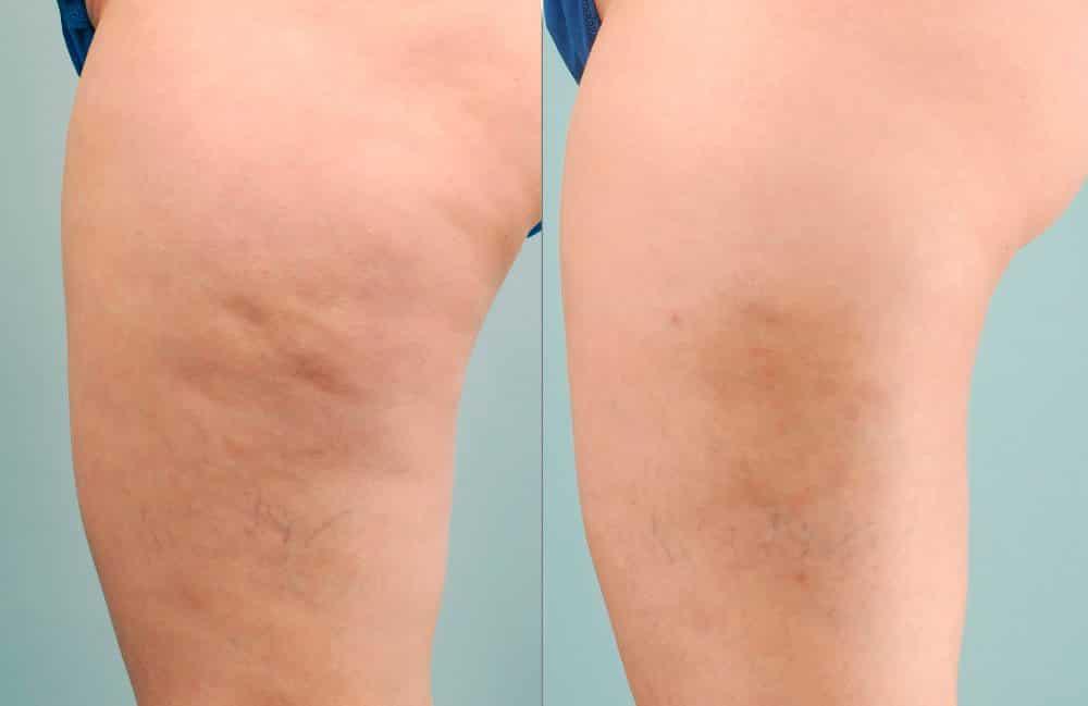 Foto do antes e depois do laser anti-celulite