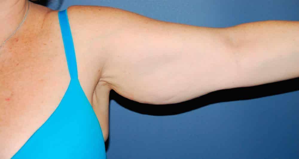 Foto de como eliminar a celulite nos braços