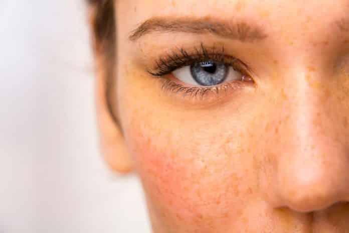despigmentação da pele causas - mancha branca na pele