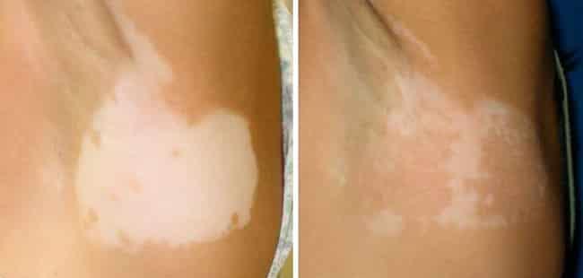 doença de pele manchas brancas
