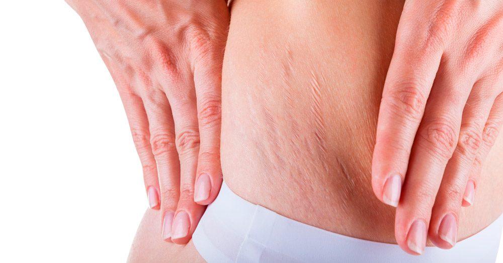Resultado de imagem para Celulite edematosa