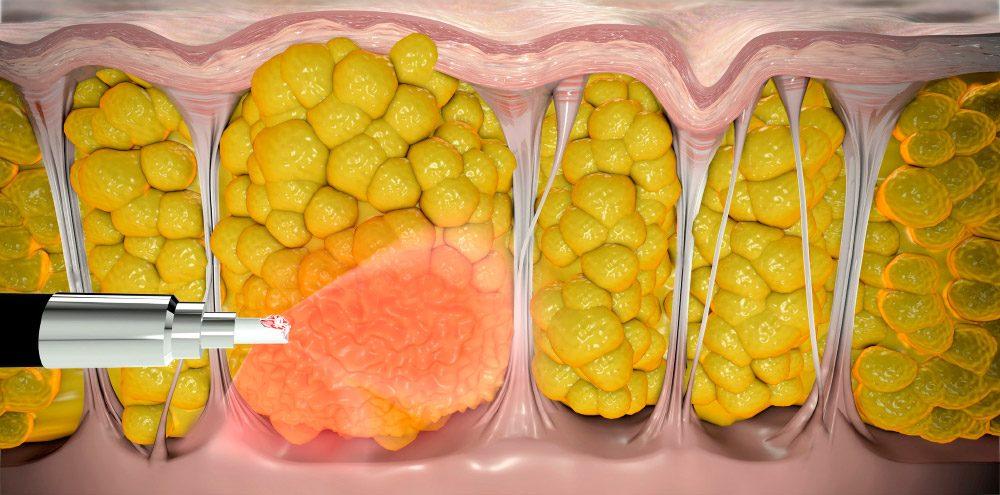 Foto do tratamento Cellulaze anti-celulite