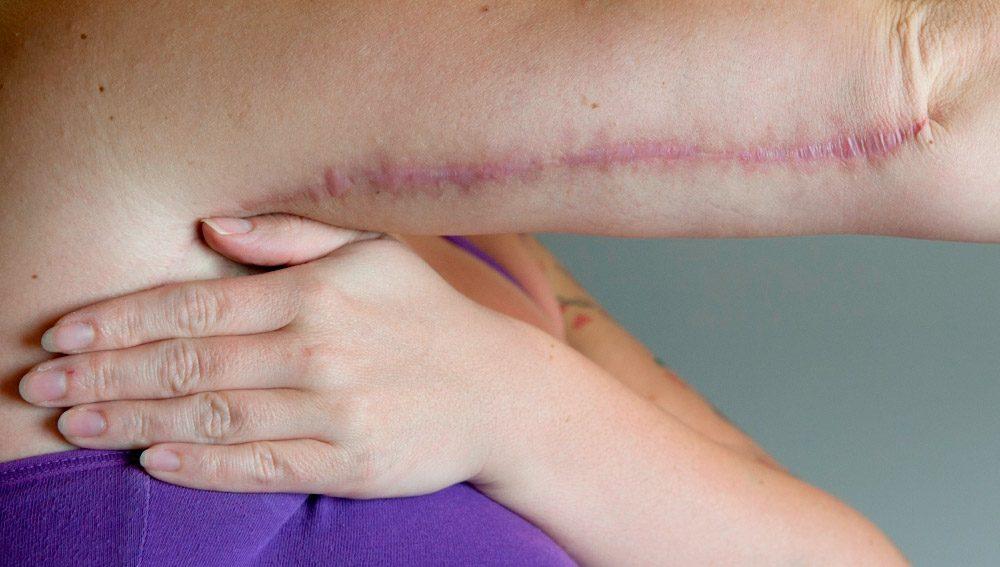 Exemplo de tratamentos para eliminar a celulite nos braços